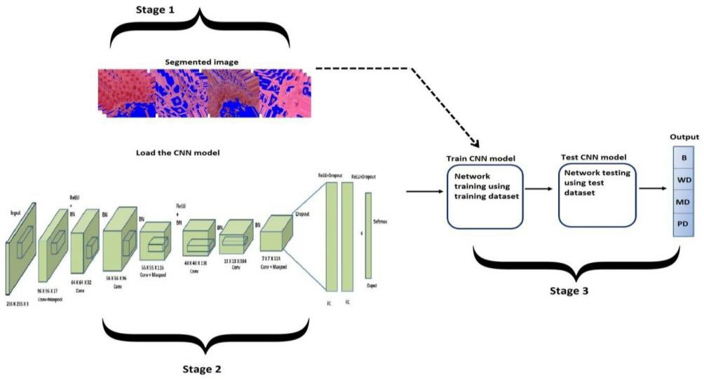 AI-based computer diagnosis framework for rapid and accurate diagnosis of oral cancers